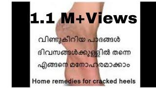 കാലിലെ  വെടിച്ചുകീറല് മാറ്റി  എങ്ങനെ  മനോഹരമാക്കാം..Magical Home remedies for cracked heels/No.84