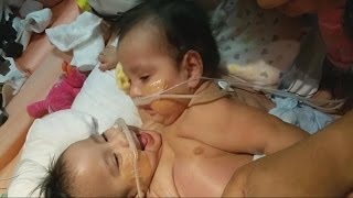 Conjoined Twins Undergo Complicated Separation Surgery