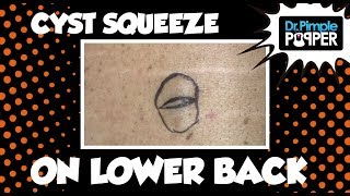 You are Hereby Granted a Cyst Squeeze...