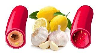 """أطعمة تقلل من خطر الإصابة بالنوبات القلبية , """" وتُقلل الكوليسترول """" .. !!"""