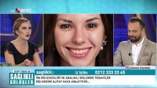 Alpay Hava ile Sağlıklı Gülüşler 4. Bölüm - Beyaz TV