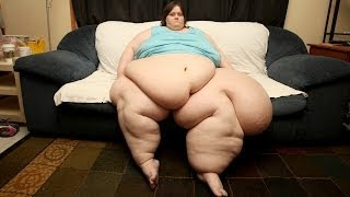 World's Heaviest Woman Attempts To Lose Weight To Wed