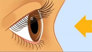 Healing Galing SO2EP13   Eyes pt 1