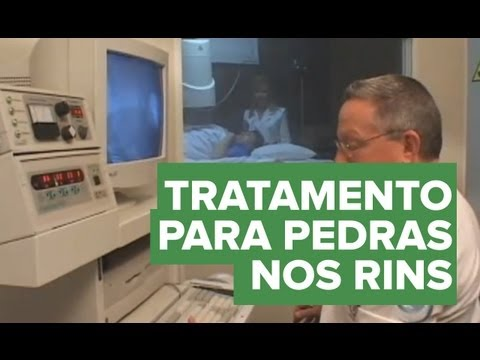 Tratamento do cálculo renal pedra nos rins Educar para Prevenir Fundação Pró Rim