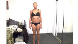 Breast Cancer Time lapse