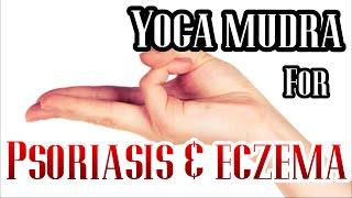 REMOVE ACNE MARKS, GET HEALTHY SKIN & HAIR | Varun YOGA Mudra
