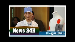 North korean defector had 27cm parasitic worm in his stomach | News 24H