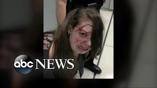 Disabled Girl Violently Subdued at Airport, Allegedly