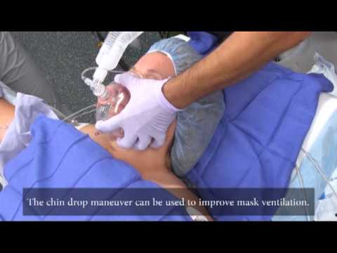 Skills in face mask ventilation from AOD