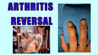 Arthritis Reversal