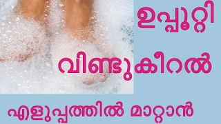 കാൽ വിണ്ടുകീറലിന് പ്രകൃതിദത്ത പരിഹാരം How to Soften Rough Dry Feet
