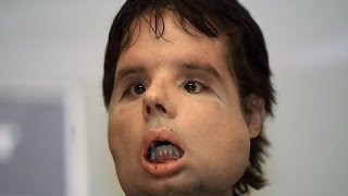 Extraordinary People Stories - The World's First Face Transplant