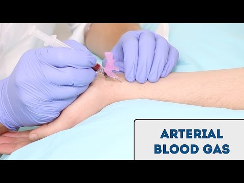 How to take an arterial blood gas (ABG) - OSCE guide
