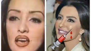 لن تصدّقي كيف تغيرت ملامح النجمات المغربيات بعد التجميل