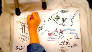 Myasthenia gravis: pathophysiology