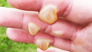 Extreme Rope Burn Story; Heights and Blisters