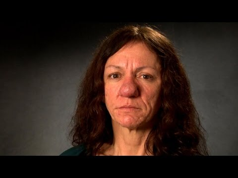 Life-Changing Nose Surgery Changed Her Life