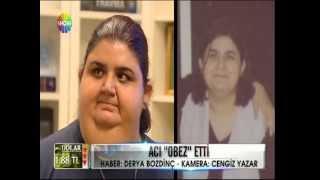 OP. DR. TUĞRUL DEMİREL SHOW TV DUODENAL SWİTCH SUPER OBEZİTE İKİZLER