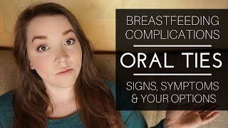 Breastfeeding Complications // Oral Ties: Signs, Symptoms + Your Options