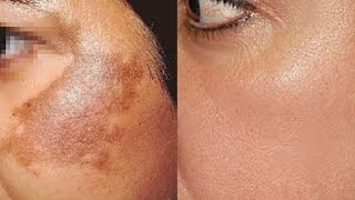 How To Use Potato To Treat Skin Pigmentation, Dark Spots, Acne Scars Easily At Home | Home Remedies