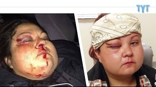 Native Woman Loses Eyesight From BRUTAL Oil Police Assault