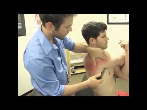 Frozen Shoulder Rehabilitation Using Gua Sha