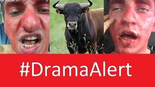 Vitaly Broken JAW! #DramaAlert RiceGum - DeStorm vs Vine - Fouseytube & Clown - Shane Dawson