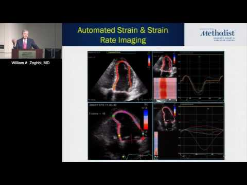 Multimodality Cardiovascular Imaging: What Does the Future Hold? (William A. Zoghbi MD) Sept 8, 2016