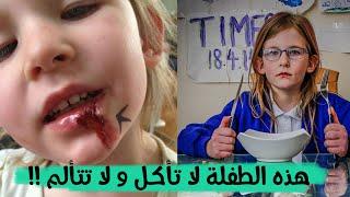 هذه الطفلة عمرها 7 سنوات ، لا تأكل ابدا ، لا تنام ، لا تشعر بأي ألم ! ماذا قالت امها !!
