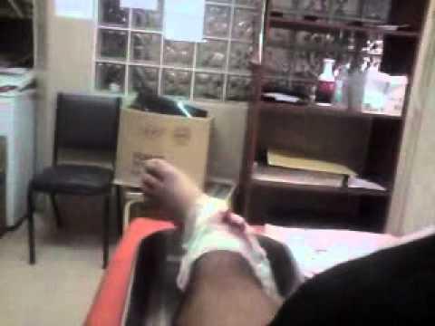 Desalojando Clavos del tobillos fractura al hueso peroné