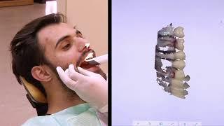 رسم ثلاثي الأبعاد لفم المريض لتصميم قوالب تطبع ايضا عبر طابعات ثلاثية الابعاد - 4Tech