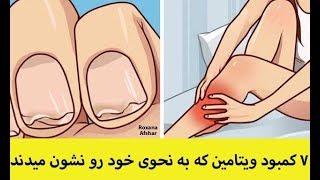 ۷ کمبود ویتامین که به شکلی در بدن خود را بروز میدهند!