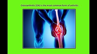 bangladeshi medical  portal-Arthritis-part-2-www.amardaktar.com