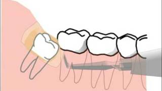 extraction of lower wisdom tooth - cartoon -  without blood