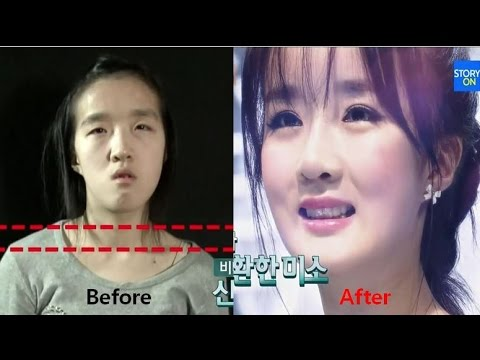 LET ME IN 5 Mommy make over to a doll (Korean Plastic Surgery Before & After, Jaw Surgery)