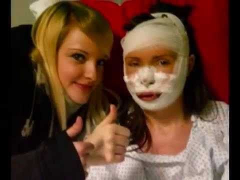 Intervento maxillo facciale di Stefania