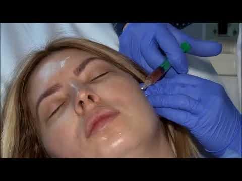 Xxx Mp4 Mariem Dabagh Botox طبيبة تفضح مريم دباغ 3gp Sex