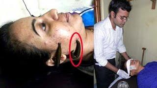 তরুণীর মুখে, শরীরে ছেড়ে দেওয়া হচ্ছে জোঁক! কারন শুনলে অবাক হবেন!!! Bangla Latest News