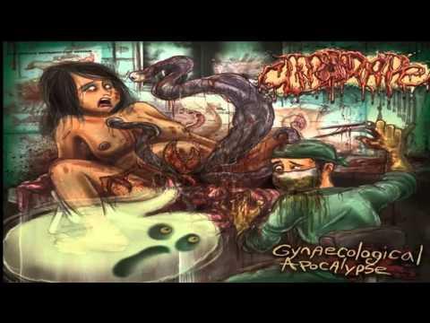 CLITORAPE - Gynaecological Apocalypse (2015)