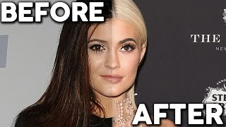 Kylie Jenner REGRETS Plastic Surgery? (Chat Show)