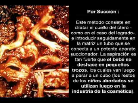 NO AL ABORTO VIDEO IMPACTANTE DE COMO ACABA LA VIDA DEL BEBE.mp4