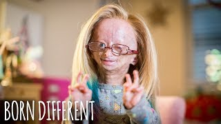 Adalia Rose: The Girl Who Ages Too Fast   BORN DIFFERENT