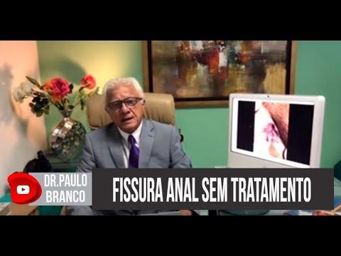 Xxx Mp4 Fissura Anal Se Não Forem Tratadas Para Que Poderão Evoluir Explica O Proctologista Dr Paulo Branco 3gp Sex
