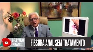 Fissura anal se não forem tratadas para que poderão evoluir explica o proctologista Dr Paulo Branco,