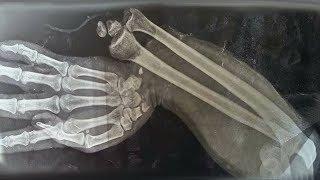 تناول طفل 150 قطعة حلوى من الجيلاتين أنظر ماذا حدث لعظامه !!!