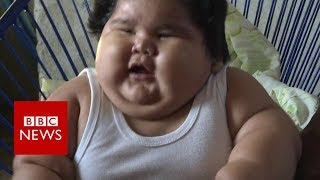 Why is this baby so overweight? - BBC News