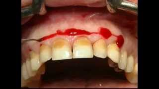 Gingival Surgery - External Bevel