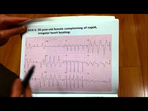 [EKG 6] 66-Year-Old Female Complains of RAPID IRREGULAR HEART BEATING