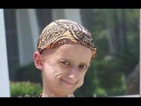 NACEN VIEJOS. Mujer con Progeria va a tener un bebe