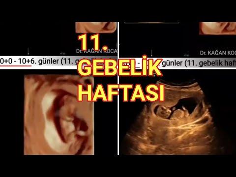 Anne karnında 11. gebelik haftasında dört boyutlu ultrasonda bebek hareketleri nasıldır?